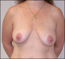 A New Breast