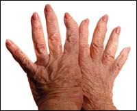 New Hand-Reconstruction Surgery Technique Using Local Anesthesia