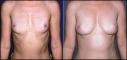 Breast Augmentation Via Fat Grafting