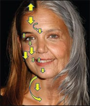 Vectors of Facial Aging and Their Reversal