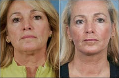 Plastic Surgeon Develops 60-Minute Facelift Procedure
