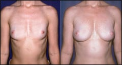 Is Fat Grafting Feasible for Breast Augmentation?