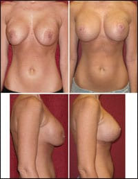 What Is the Best Short Scar Lift?