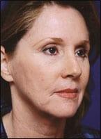 The Stem Cell Facelift