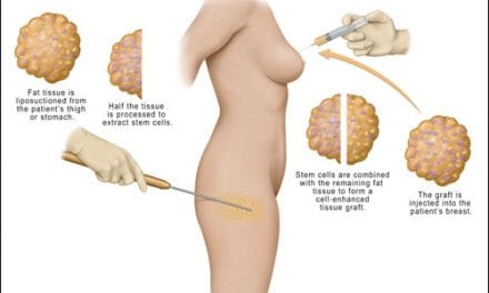 Using Stem Cells in Breast Augmentation