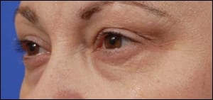 An Affordable, Nonsurgical Blepharoplasty Procedure