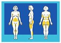 Lawrence M. Koplin, MD, FACS, on Fat Grafting
