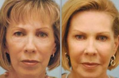 Is Fat Grafting Superior to Using Fillers?