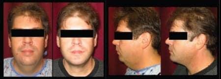 Isolated Neck Rejuvenation and Submentoplasty