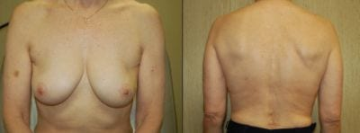 Pioneering Breast Reconstruction Surgery