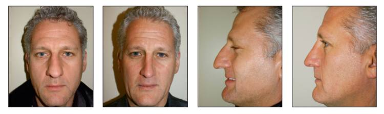 A Modern Approach to Natural-Looking, Long-Lasting Rhinoplasty Results