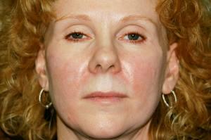 """Facial Revolumizing""  Using Dermal Fillers"