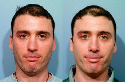 Revision Rhinoplasty from the Patient's Point of View