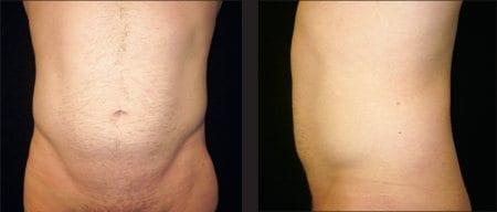 Liposculpture Versus Liposuction