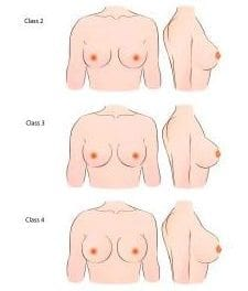 A New Breast Shape Classification