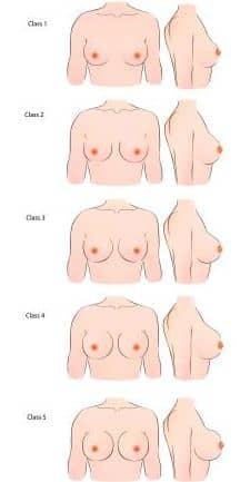 A New Breast Shape Classification