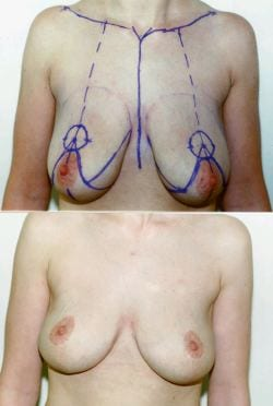 The Evolving Breast-Reduction Procedure