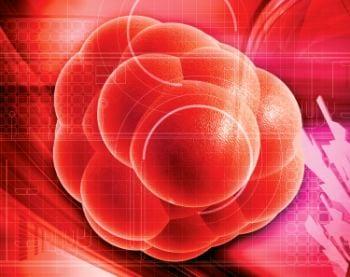 Joel Aronowitz, MD, on Stem Cells