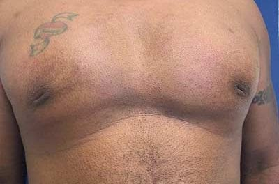 A Minimally Invasive Technique for the Treatment of Acquired Nipple Inversion