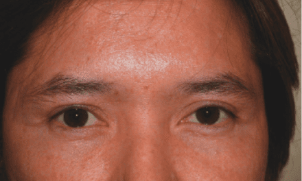 IN PRACTICE: Raising Eyebrows