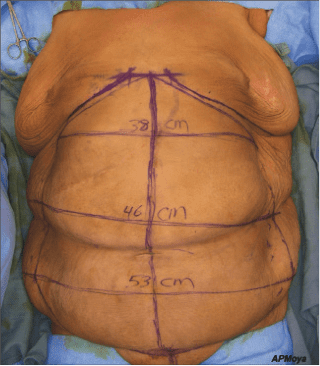 THE BODY: The Corset Trunkplasty Comes of Age