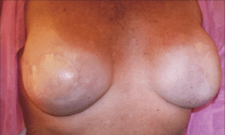 the Breast: Seeing is Not Believing