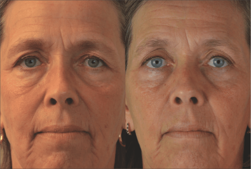 THE FACE: Tone Up – December 2012 PSP