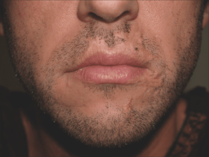 Taking  it on the Chin – December 2012 PSP