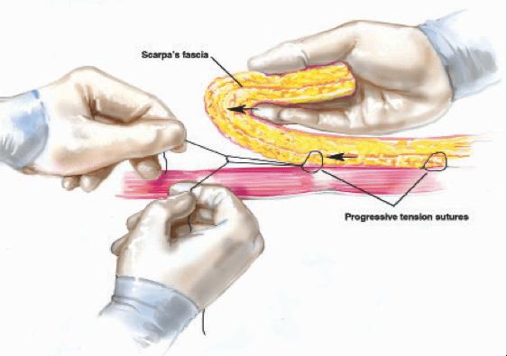 Drainless Tummy Tuck Breakthrough – December 2012 PSP
