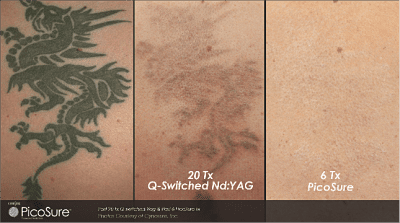 THE SKIN: Game Change: PicoSure Revolutionizes Laser Tattoo Removal