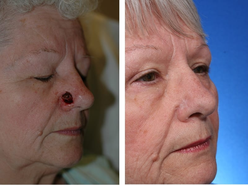 New Procedure Can Repair Skin Cancer on the Nose in One Step