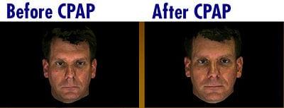 Treating Sleep Apnea Boosts Attractiveness