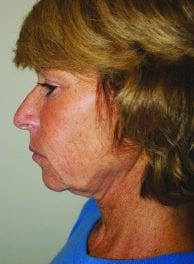 Laser Pointers:  One surgeon's experience with the Cortex Fractional CO2 Erbium:YAG laser system