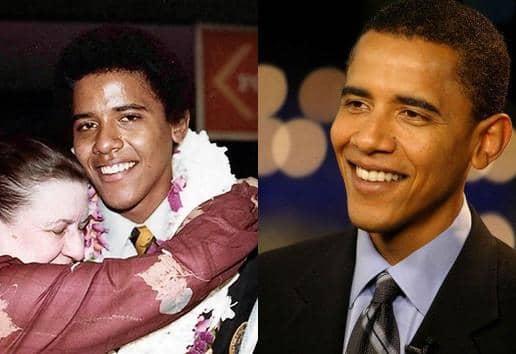 Barack Obama's nose job