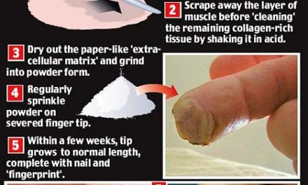 Scientists re-grow man's finger using 'pixie dust'