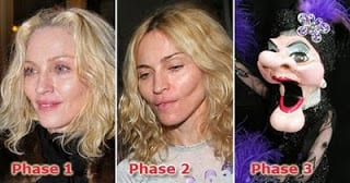 How Much Plastic Surgery Can You Buy for $200K?