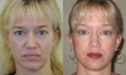 Surgeon Describes How He Does Stem Cell Facelifts
