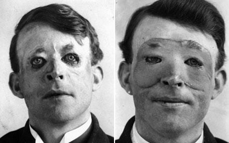 Photos of First Plastic Surgery Patient Released