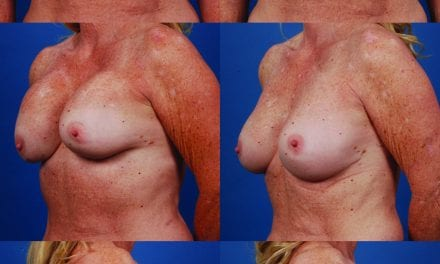 The Breast: Closing In on Capsular Contracture