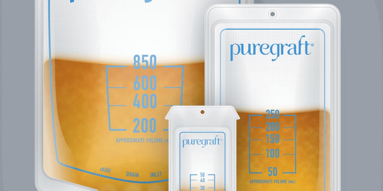 Study: Puregraft Closed System Outperforms Centrifuge for Fat Graft Retention