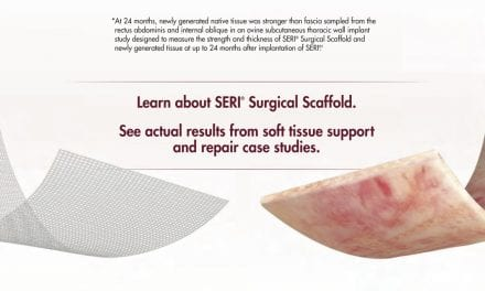 Advertising Supplement: SERI Surgical Scaffold