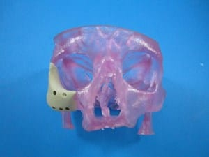 FDA Clears First 3D-Printed Personalized Facial Implant