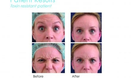 The Face: It's Faux Tox Time