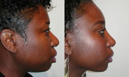 Nasal Implant Choice/Placement May Up Risk for Revision Surgery in Ethnic Patients