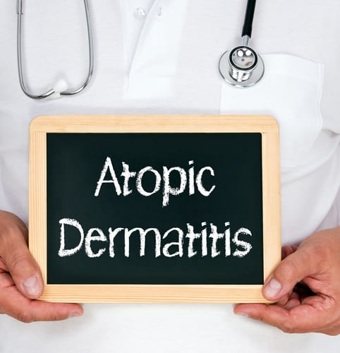 New AAD Guidelines Call for Proactive Approach to Atopic Dermatitis