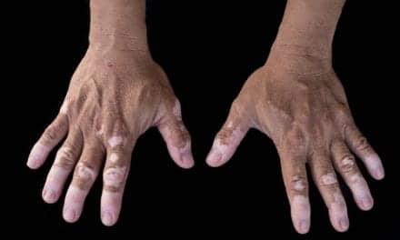 Vitiligo Breakthrough: Combo Therapy Results in Faster Repigmentation