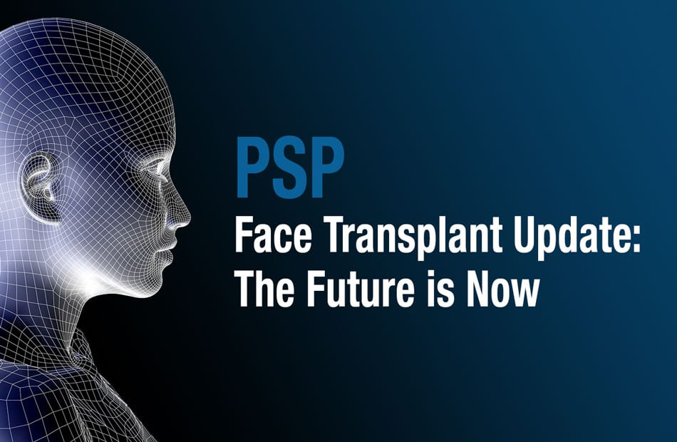 Accelerated Aging Seen Following Face Transplantation