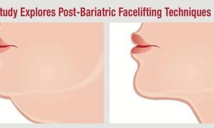 Study Explores Post-Bariatric Facelifting Techniques