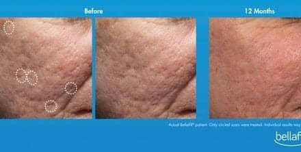 The Skin & Aesthetics: Will Suneva Medical Inc.'s Bellafill fill a void?