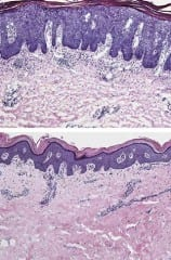 Can One Treatment of BI 655066 Cure Psoriasis?